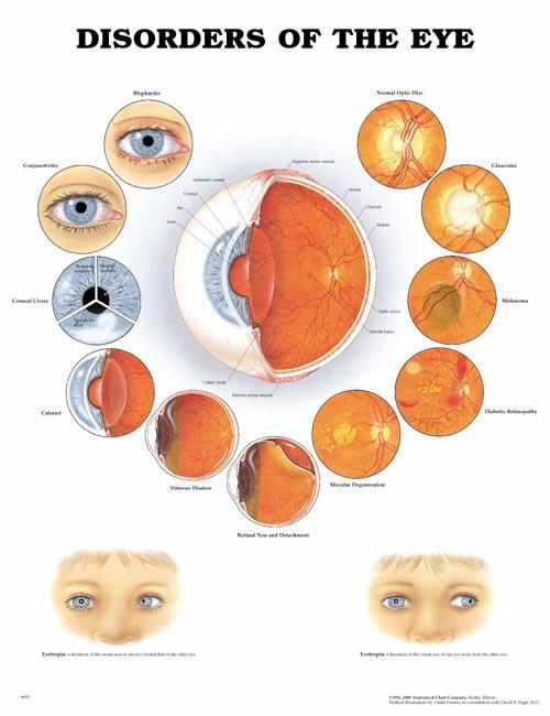 Eye Diseases Chart | www.imgkid.com - The Image Kid Has It!
