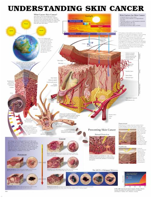 Understanding Skin Cancer Anatomical Chart